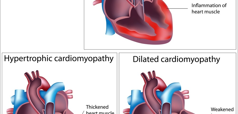 Deferiprone Effective At Treating Friedreich's Ataxia-Induced Cardiac Disease