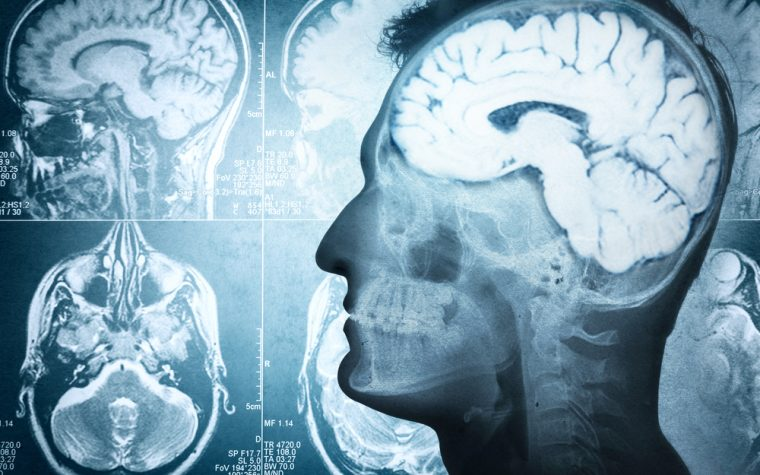 Study May Explain Why Only Certain Brain Cells Are Damaged in Friedreich's Ataxia