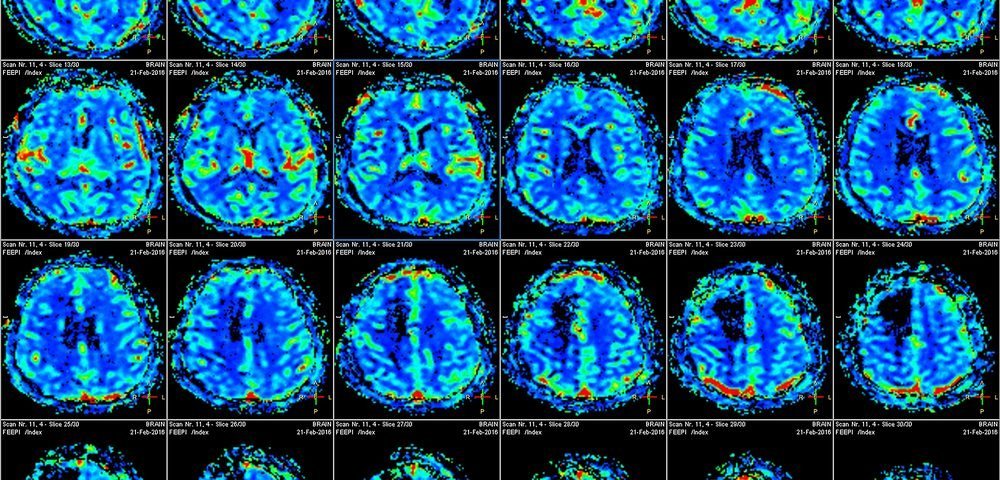 Brain Structure Abnormalities in Late-onset Friedreich's Ataxia Not Linked to Disease Features